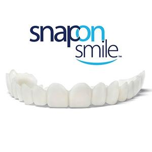 Snap-On-Smile ideiglenes foghíd